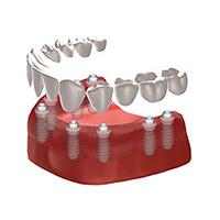 Informationen Stuttgart Implantologie Zahnimplantate Implantate