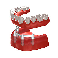 Implantate Stuttgart Implantologie Zahnimplantate
