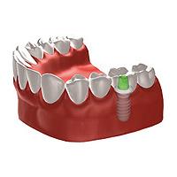 Stuttgart Implantologie Zahnimplantate Implantate